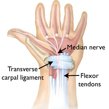 carpal tunnel steroid injection during pregnancy